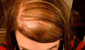 La caduta dei capelli nella donna e menopausa - WINNER'S ...